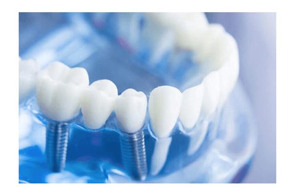 Hudson Valley Periodontics & Implantology